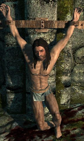 File:Male Torture Victim.png