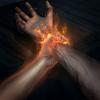 Прижигание (Арт)