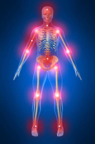 Proceso Génesis dolor