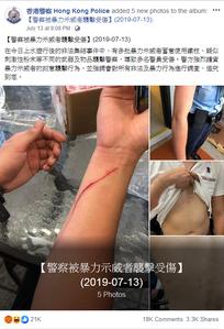 逃犯條例 HKP injuryfbpost