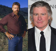 Treat Williams (before-after)