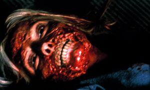 The Flesh-Eating Virus