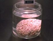 Tyson's Brain