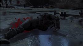 Penaswela fter losing his leg