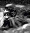 Okkult-Fan Doomtrain