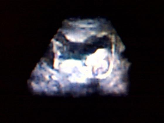 Arquivo:Ultrasound.jpg