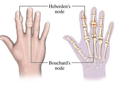 Arthritis hand nodes
