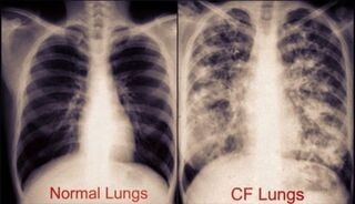 Cystic-Fibrosis-Lungs-Pictures-3