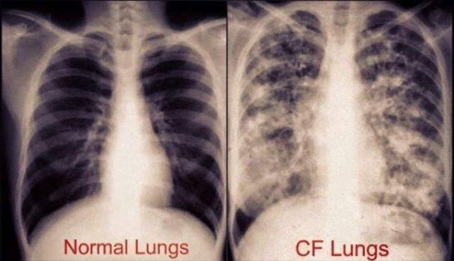 File:Cystic-Fibrosis-Lungs-Pictures-3.jpg