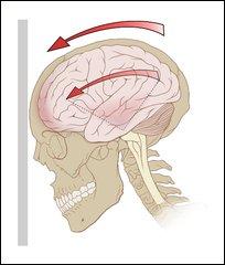 FBW Concussion