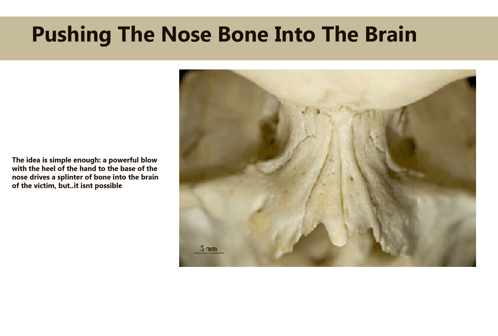 Pushing The Nose Bone Into The Brain Galnet Wiki Fandom Powered