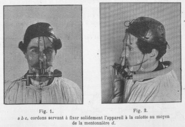 Nasal Breathing Valve Tissot 1904 In Use