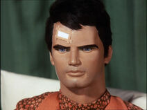 Captain Scarlet recovering