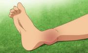 Kota's injured leg