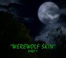 Werewolf Skin/TV episode