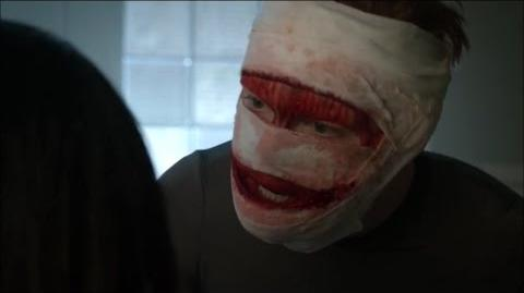 "Gotham 3x13-Jerome comes back to life ""Where's my face?"""