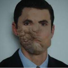 Visage de Jason avant sa chirurgie