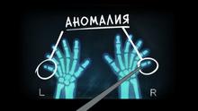 S2e12 six fingers