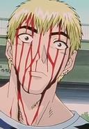 Bloodied Onizuka
