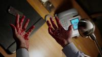 601-Renard's bloody hands