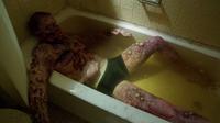 309-Boils in a bath