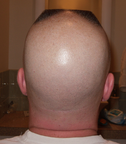 File:Horseshoe flattop back.png