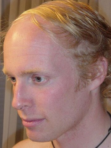 File:Comb over.jpg
