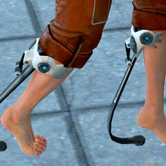 Closeup of Chell's Advanced Knee Replacements.