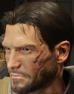 Blake's scar
