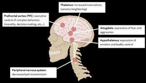 Talon Altered Neuroanatomy