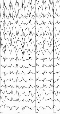 Talon's Epileptic EEG Waves