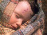Harry Potter's scars