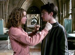 Hermione e Harry GiraTempo