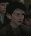 Boy with birthmark.png
