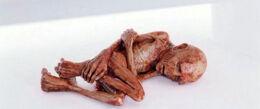 Voldemort's mutilated soul