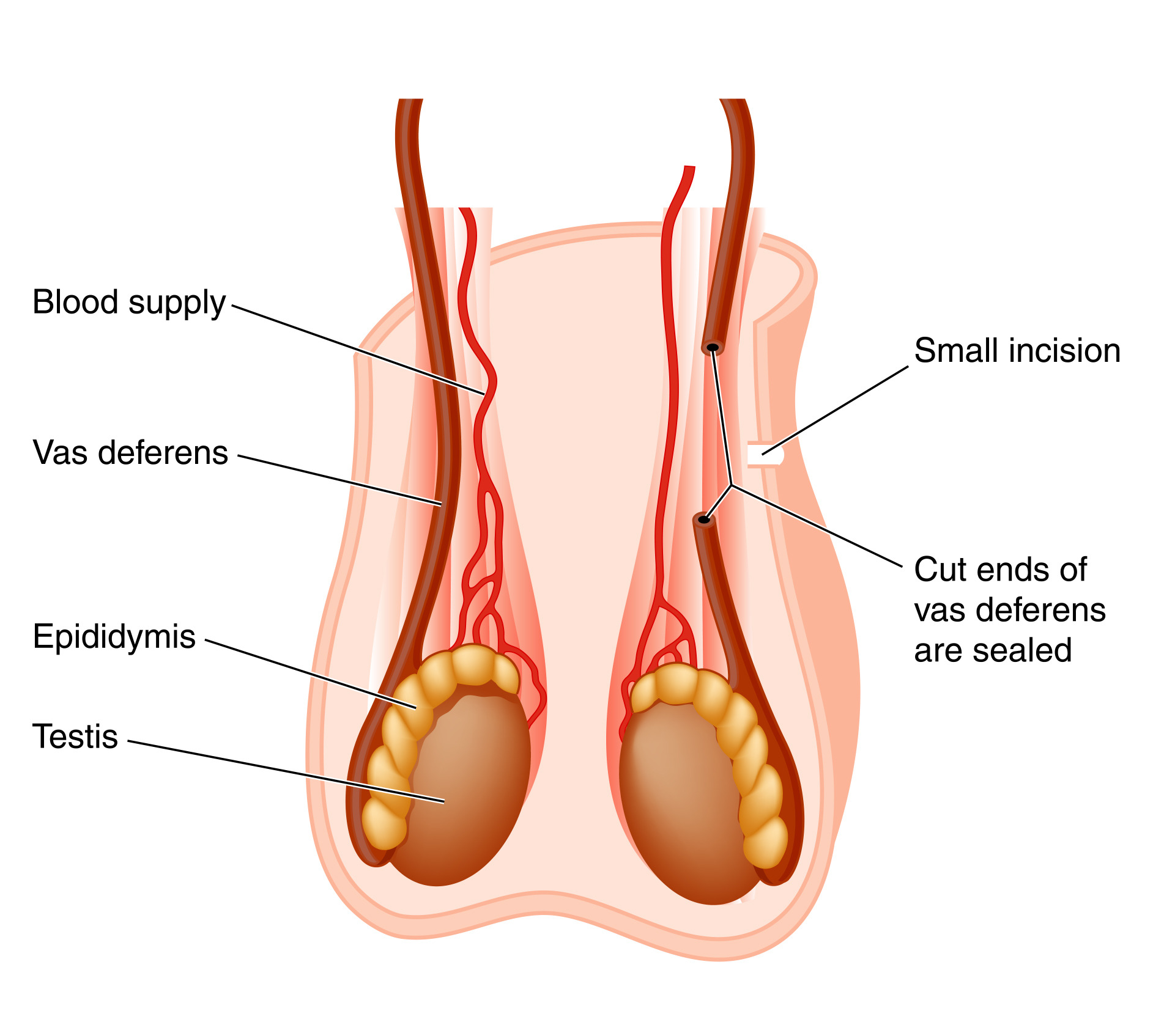 Effects of vascectamy on sex life