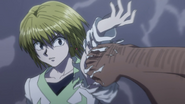 Kurapika's arm being broken