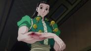 21 - Illumi's broken arm