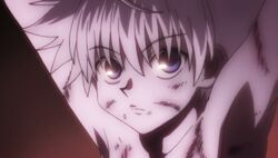Killua tortured 2