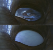 Alien autopsy form Independance Day 1-15 screenshot
