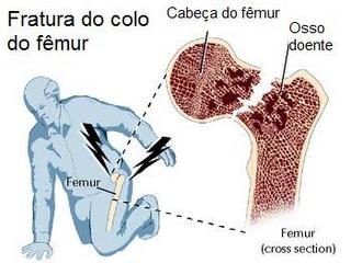 Osteoporose3