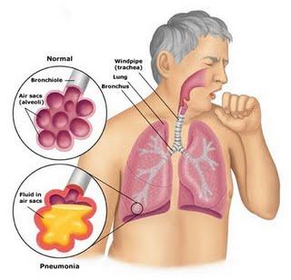 Pneumonia | Infomedica Wiki | Fandom