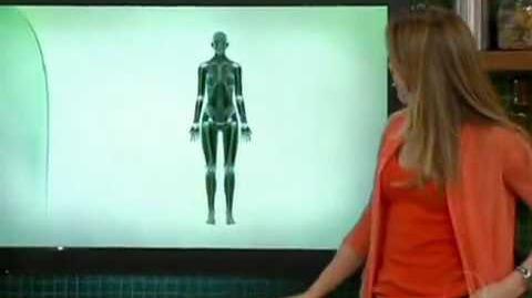 Artrite Reumatoide no Bem Estar Rede Globo 2 mp4