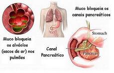Fig.fibrosecistica.2.jpg