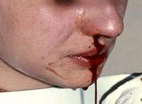 Hemofilia 3