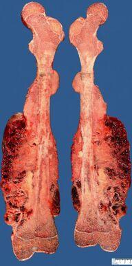 Osteossarcoma 5