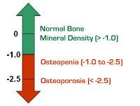 Osteoporose5