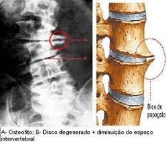 Thiago osteo6