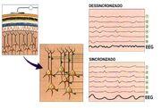 Figura 4 - EEG