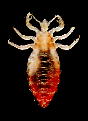 File:Head louse.png